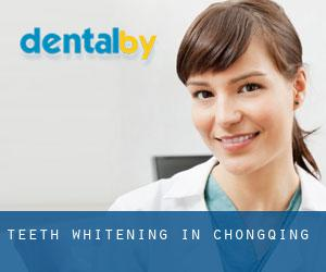 Teeth whitening in Chongqing