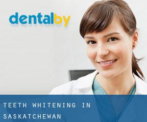 Teeth whitening in Saskatchewan
