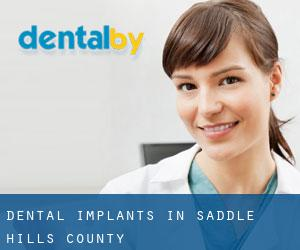 Dental Implants in Saddle Hills County